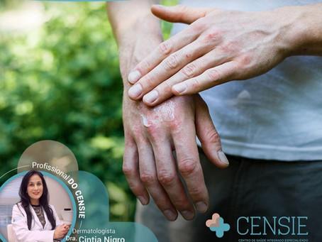 Alergias de pele X inverno
