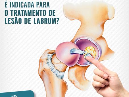 Quando a cirurgia é indicada para o tratamento de lesão de labrum?