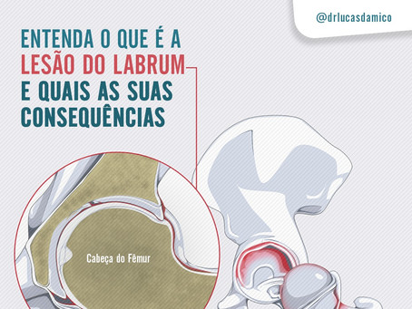 Entenda o que é a lesão de labrum e quais as suas consequências