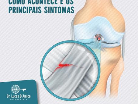 Lesão do ligamento cruzado anterior: como acontece e os principais sintomas?