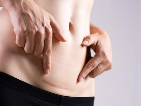 15% dos pacientes que realizam cirurgia no abdômen desenvolvem hérnia