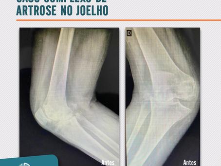 Caso complexo de artrose no joelho