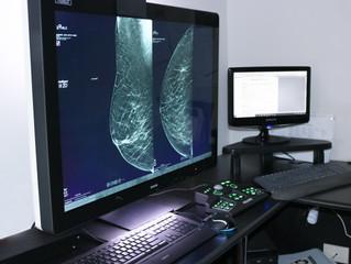 Comissão de Mamografia recomenda tomossíntese como principal exame de rastreio para o câncer de mama