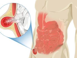 Hérnia inguinal atinge 20% dos homens em alguma fase da vida