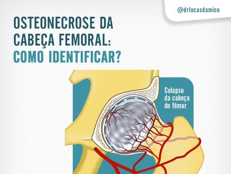 Osteonecrose da cabeça femoral: Como identificar?