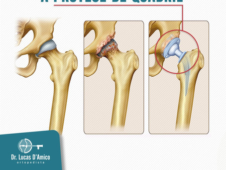 Entenda como funciona a prótese de quadril