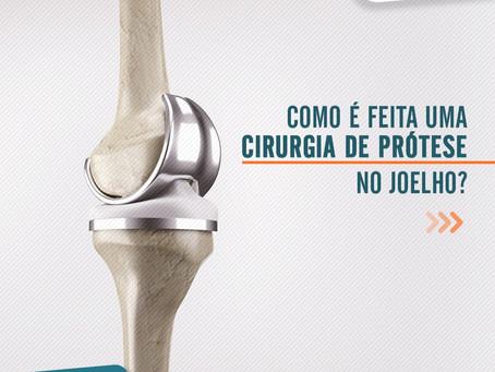 Como é feita uma cirurgia de prótese no joelho?