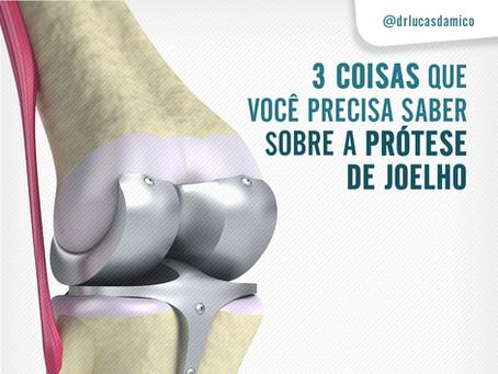 3 coisas que você precisa saber sobre a prótese de joelho