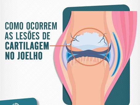 Como ocorrem as lesões de cartilagem no joelho?