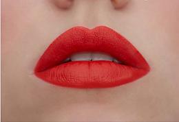 Lip fillers kampanjen går ut snart, 25 november!
