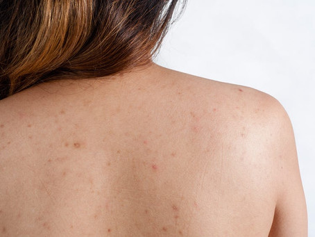 Therapist Thursday- Conversations with a Skin Expert: Back Acne