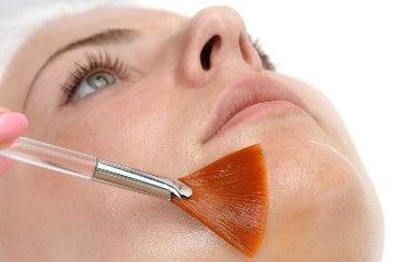 Smoothing Skin Peel