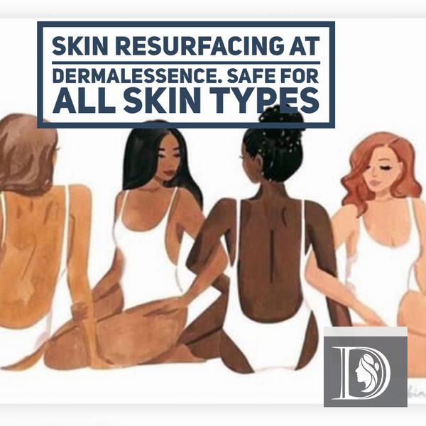skin resurfacing at DermalEssence