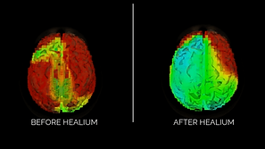 BEFORE-BRAIN-HEALIUM-540x304.png