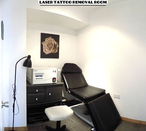 Leicester tattoo removal