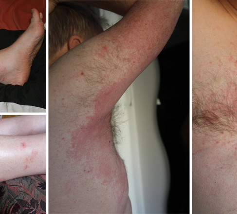 Eczema - Patient story by Kathleen Powderly
