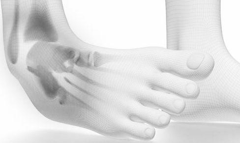 acute-ankle-injuries800-800x426_edited.j