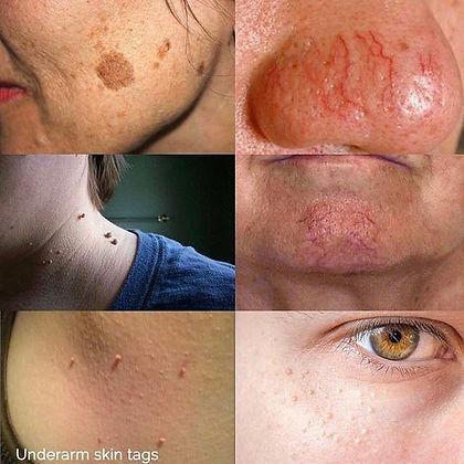 Skin Irregularities.jpeg