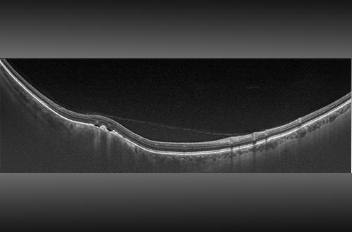 Optomap OCT Image