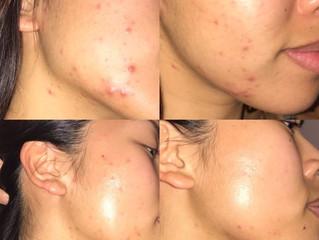 Season & Skin Changes