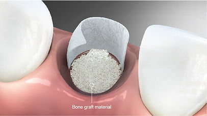 bone-graft-bone-augmentation.jpg