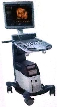 4D超音波検査