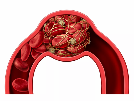 Tratamento com anticoagulante em pacientes com COVID-19