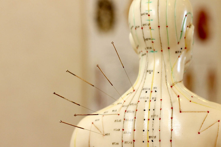 Acupuncture-points.jpg