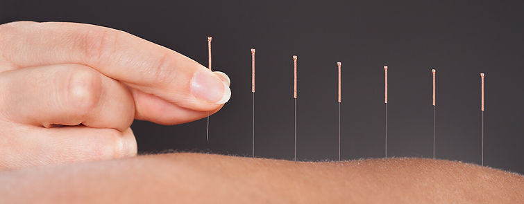 acupuncture-therapy.jpg
