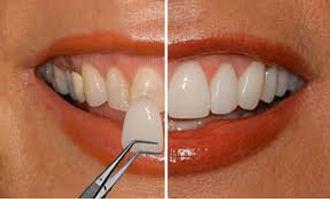 Facette Ceramique Dentiste Divonne.jpg