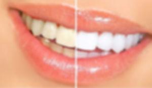 Blanchiment_Dentaire_Dentiste_Divonne