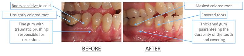 periodontal surgery-dentist-divonne.png