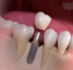 Straumann Implant Dentaire Dentiste Divo