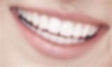 Esthetique Gingivale Dentiste Divonne.pn