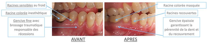 chirurgie plastique parodontale-recessio