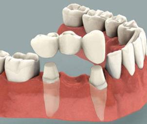 Bridge Dentiste Divonne.jpg