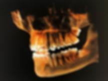 Cone-beam-3D-dentiste-divonne.jpeg