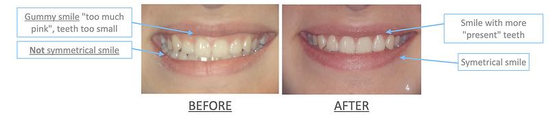 periodontal surgery gummy smile-dentist-