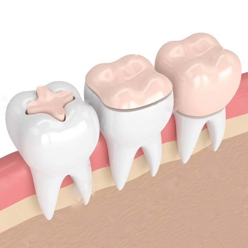 inlay-overlay-couronne-dentiste-divonne.