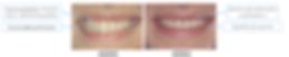 chirurgie plastique parodontale sourire