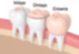 Inlay Onlay Dentiste Divonne