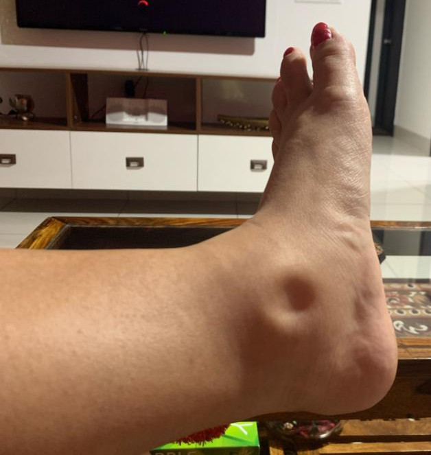 Pedal edema due to autoimmune disorder and subsequent fluid retention
