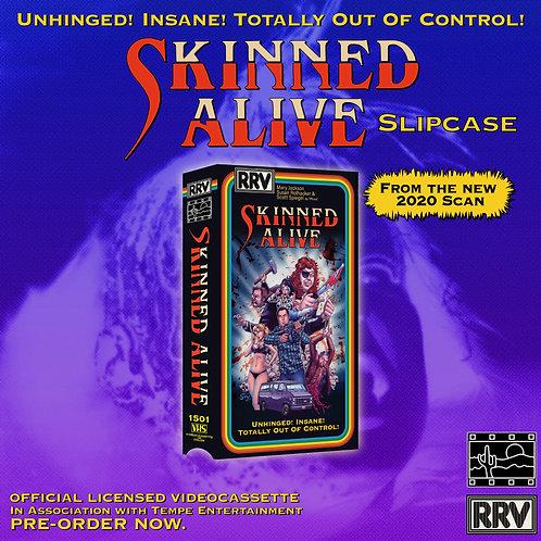 Skinned Alive (Officially Licensed) Dir. Jon Killough