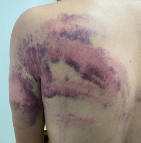 A man shows bruises on his back, allegedly the result of being beaten by Croatian authorities [Handout/Danish Refugee Council]