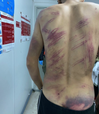 Victims say Croatian authorities beat them with metal batons, wooden sticks, belts, their own fists and kicked them with their boots [Handout/Danish Refugee Council]