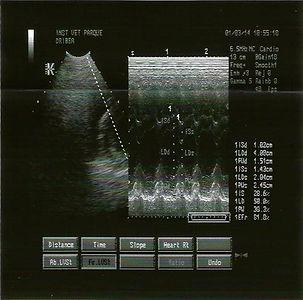 ecocardiografia de despiste de cardiomiopatia dilatada