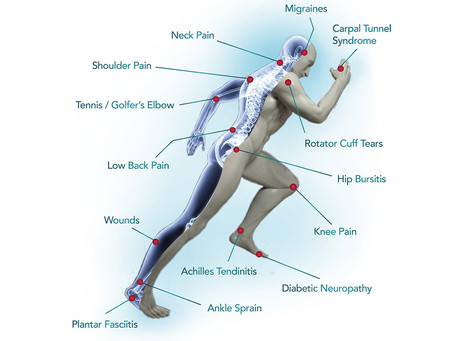 Cold Laser Therapy – Frequently Asked Questions