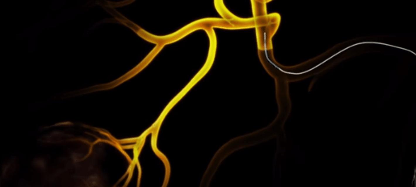 swiftninja-steerable-microcatheter-vein.