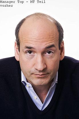 androgenetischer Haarausfall, Manager Top, GLatze, Toupet