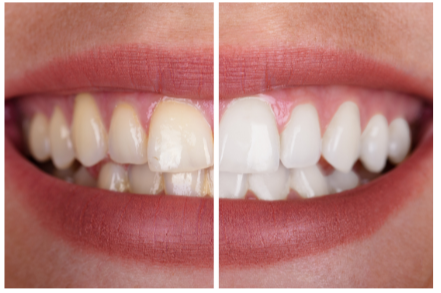 Before and after - teeth whitening